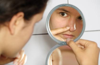 quelles sont les causes d'acne